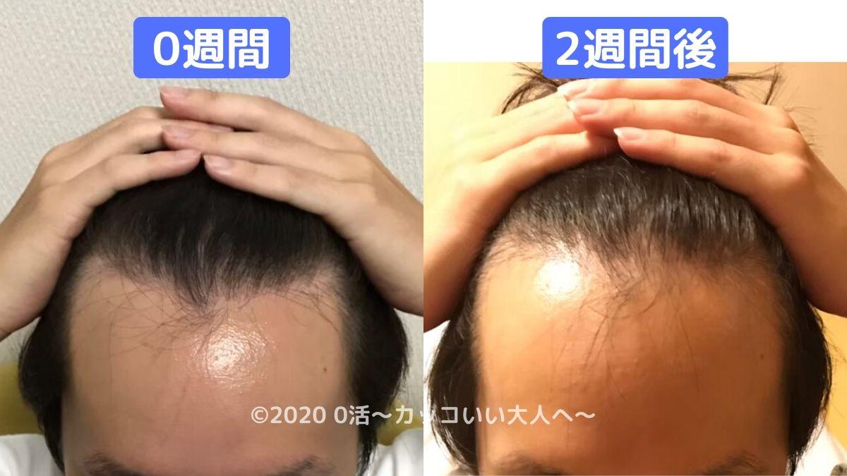 AGA治療の初期脱毛はひどいのか?【実体験】前頭部