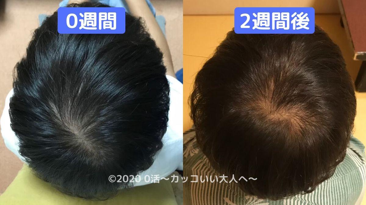 AGA治療の初期脱毛はひどいのか?【実体験】後頭部