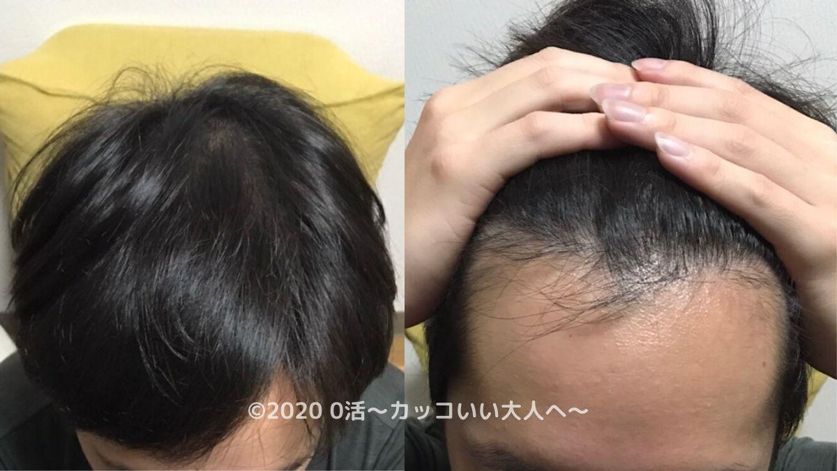 AGA治療効果をブログで振り返る(3ヶ月目)前頭部