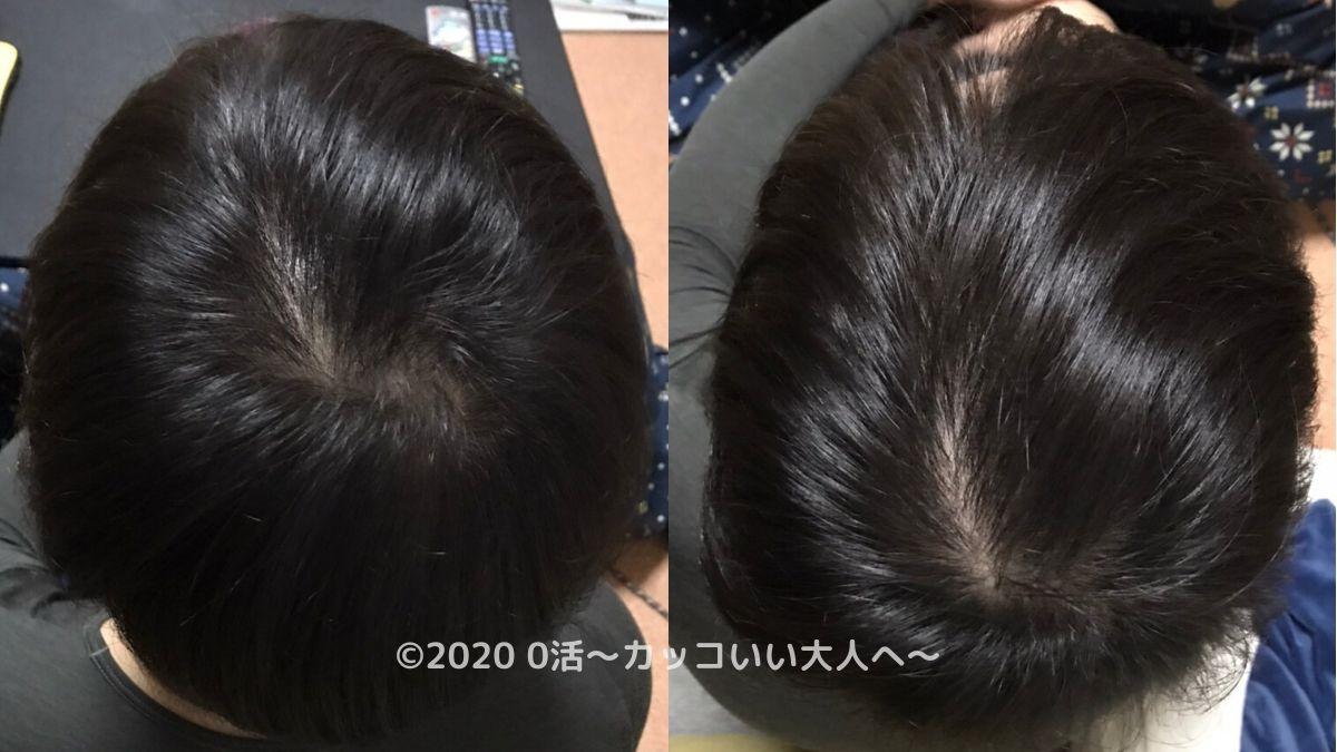 AGA治療効果をブログで振り返る(3ヶ月目)後頭部