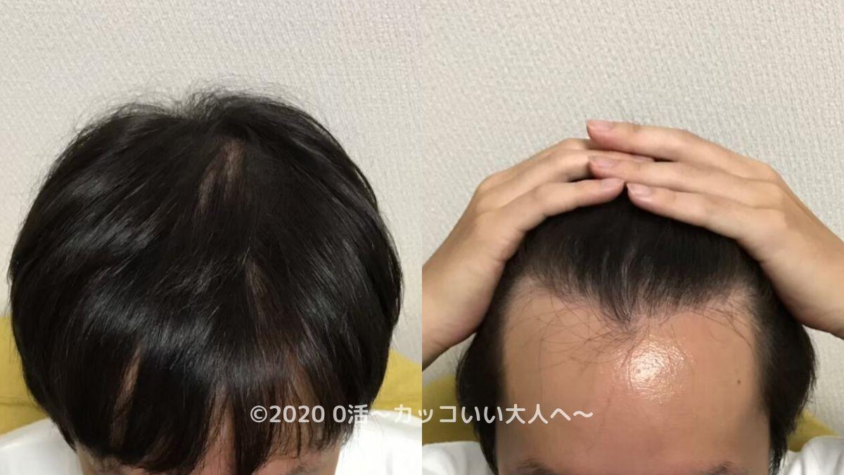 AGA治療をブログで振り返る前の頭皮(前頭部)