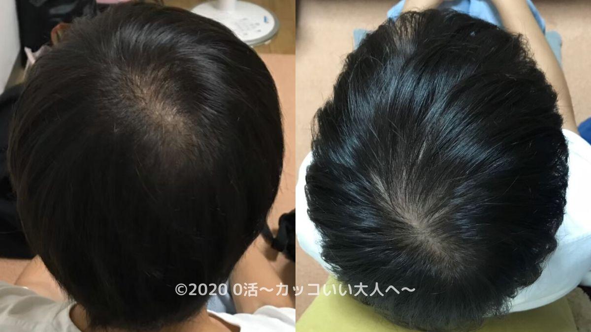 AGA治療をブログで振り返る前の頭皮(後頭部)
