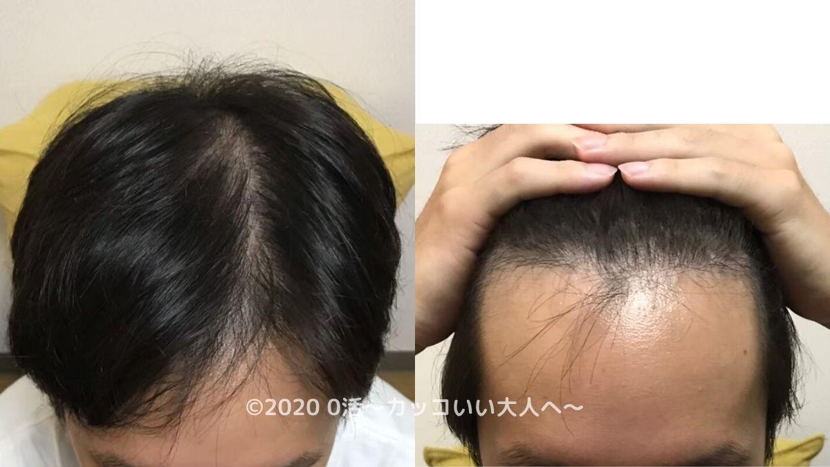 AGA治療効果をブログで振り返る(1ヶ月目)前頭部