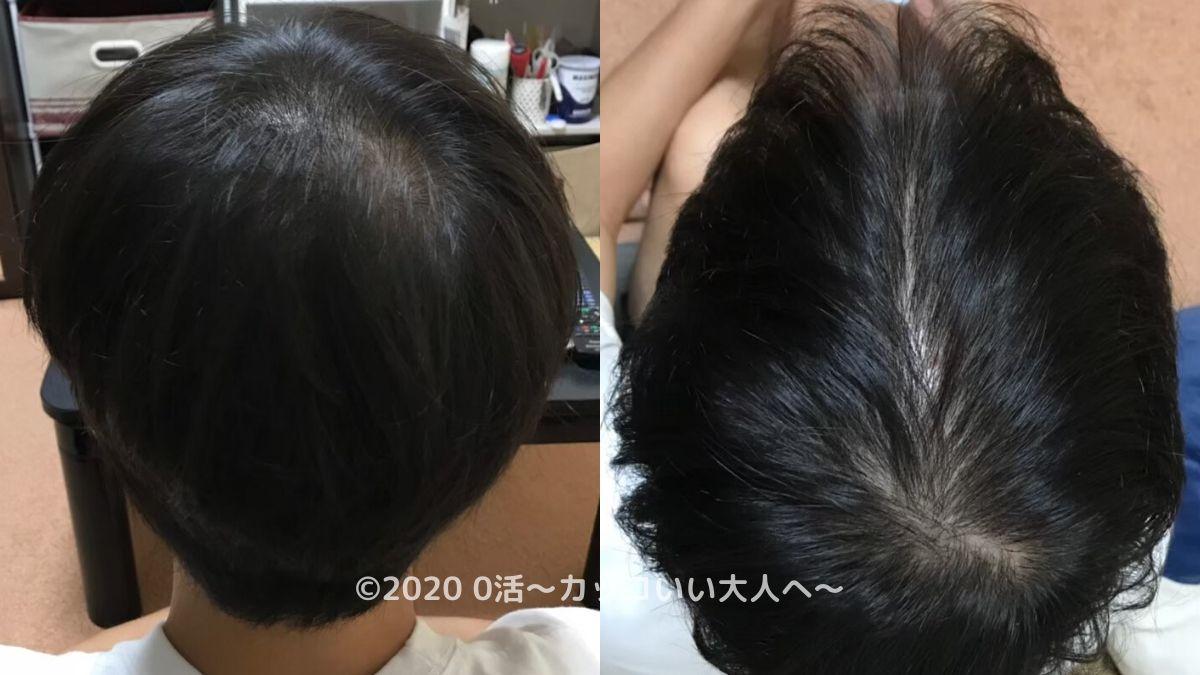 AGA治療効果をブログで振り返る(1ヶ月目)後頭部
